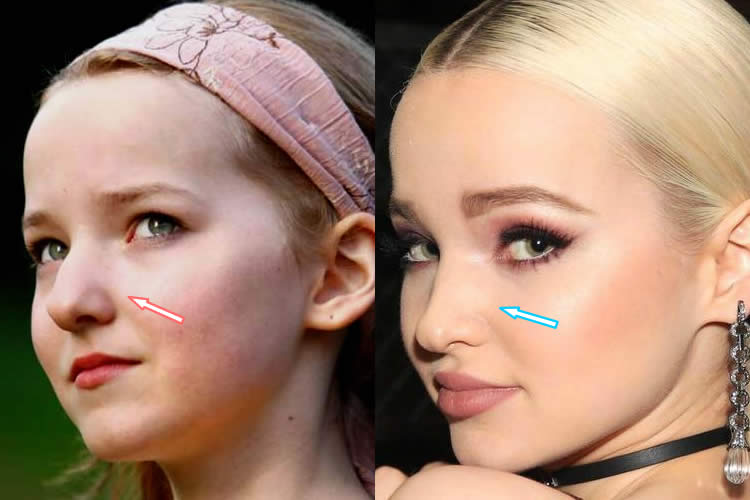dove cameron nose job