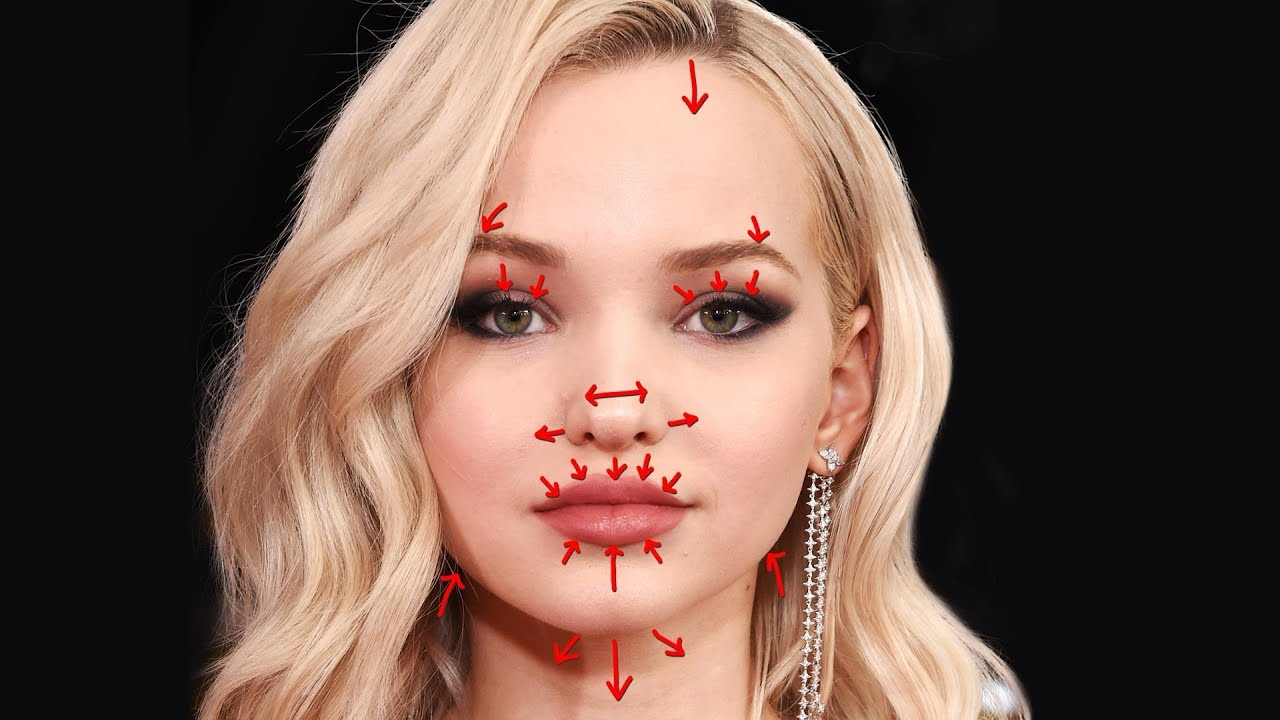 dove cameron lip injections
