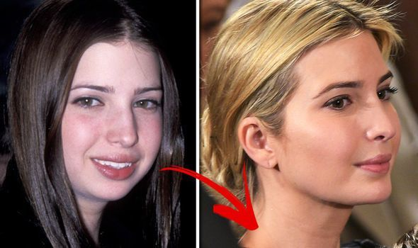 Ivanka Trump after and before