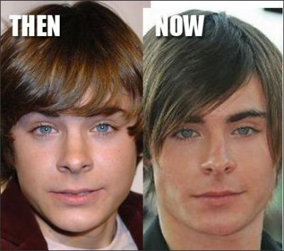 zac efron before and after plastic surgery - photo